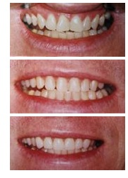 Root Canals Erskineville