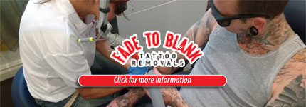 Laser Tattoo Removal Ashfield