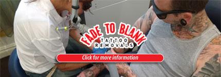 Laser Tattoo Removal Ashfield